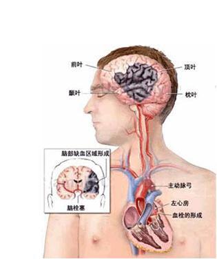 脑梗塞后遗症的注意事项