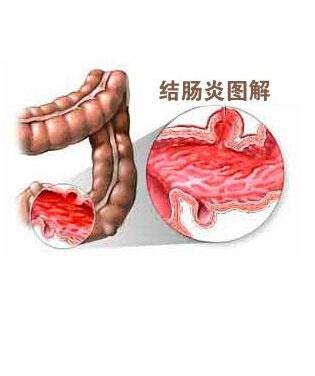 肠炎吃什么食物好呢